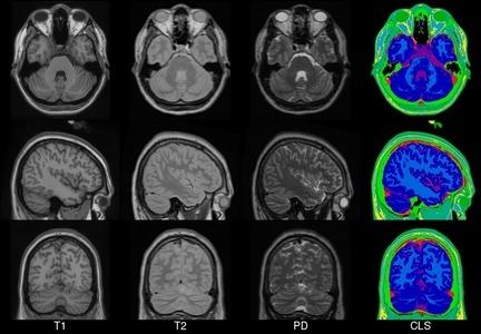 ICBM152 Brain Atlas