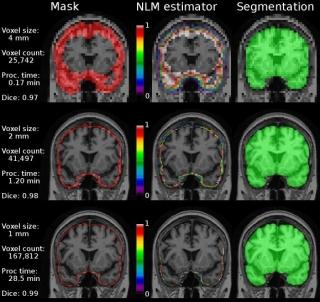 Brain Extraction based on nonlocal Segmentation Technique (BEaST
