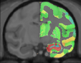 MNI Macaque Brain Atlas