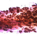 Slide of mouse mammary gland tissue showing small cancerous tumours.