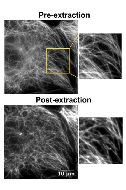In this figure, the MT cytoskeleton is shown in a living cell (pre-extraction) and after the extraction treatment (post-extraction), using SiR-tubulin (Spirochrome).