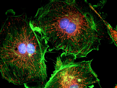 fluorescent image of three cells with membrane, nuclear, and mitochondrial staining