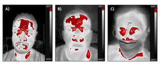 Digital infrared thermograms of a healthy control (A), a confirmed COVID-19 negative patient (B) and a confirmed positive COVID-19 patient (C) are shown.