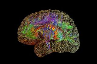 image from McConnell Brain Imaging Centre