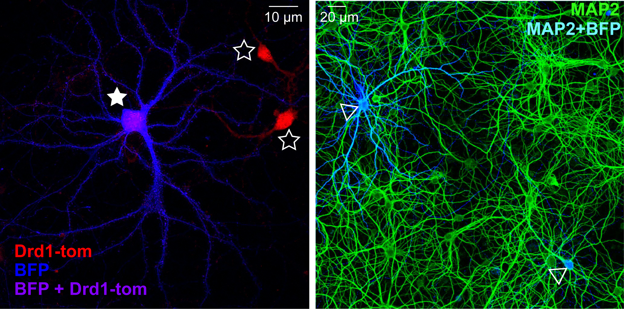 "picture adapted from a figure in ""Front. Cell. Neurosci. 