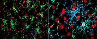 Cellules microgliales humaines obtenues à partir de SCPi, transplantées dans le cortex d'une souris et colorées par des anticorps anti-P2YR12 et anti-TMEM119, spécifiques de la cellule microgliale (en vert).