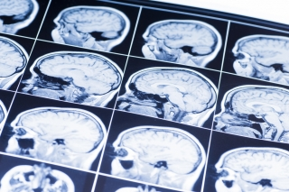 Subjects were scanned using magnetic resonance imaging (MRI) to determine brain volume and had cerebrospinal fluid (CSF) extracted to test levels of amyloid-Beta and tau.
