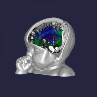 This artwork shows a few of the connections in the brain of a typically developing 6-month infant who participated in the study.  In the study, connections between all brain regions are generated, and the lengths and strengths of the connections are combined to determine the network efficiency of each region.