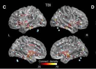 Researchers found that white matter connections between several brain regions of concussed individuals showed abnormal connectivity that might reflect both degeneration and the brain's method of compensating for damage.