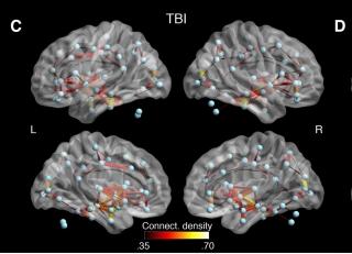 Les chercheurs ont découvert des connexions anormales entre plusieurs régions du cerveau au sein de la substance blanche chez les athlètes commotionnés, ce qui pourrait témoigner à la fois d'une dégénérescence et d'un mécanisme compensateur du cerveau.