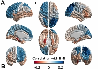 How cortical thickness associates with BMI. Body mass index relates positively with cortical thickness in blue areas, and negatively with cortical thickness in red areas.
