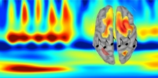 Researchers gave 17 individuals auditory memory tasks that required them to recognize a pattern of tones when it was reversed, while being recorded on MEG and EEG.
