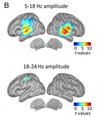 The top image shows auditory melody is principally processed in the bilateral auditory cortex, with neural oscillations operating in the broad Alpha range (5-18 Hz). The bottom image shows, on the contrary, internal temporal predictions are represented in the left-lateralized sensorimotor cortex, with neural oscillations operating in the Beta (18-24 Hz) range.