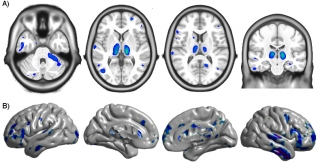 The top row shows brain atrophy, and the bottom row shows cortical thinning in the brain of a person with HIV.