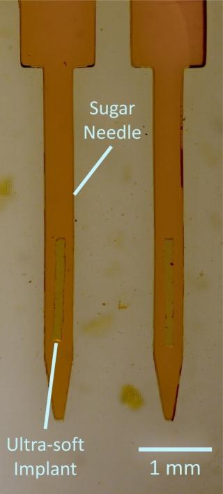 L'implant encapsulé dans une aiguille de sucre durci