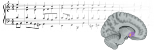 The researchers found that reward prediction errors from music correlated with activity in the nucleus accumbens, a brain region that in previous studies has been shown to activate when the subject is experiencing musical pleasure.