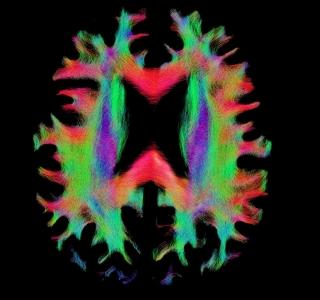 Le connectome – une carte des connexions neuronales – indique comment les régions du cerveau interagissent et collaborent pour effectuer certaines tâches.