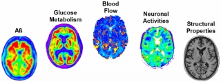 This study used multiple imaging techniques to measure amyloid concentration, glucose metabolism, cerebral blood flow, functional activity and brain atrophy in 78 regions of the brain, covering all grey matter.