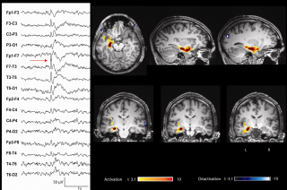 epilepsy-group