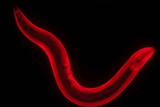 Caenorhabditis elegans nematode  (roundworm)