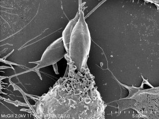 Parasite Leishmania (top centre) being ingested by a macrophage – an immune cell at the front lines of our body's defense against foreign invaders.