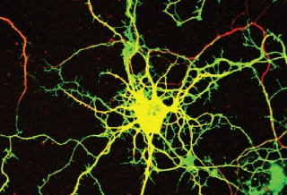 Peter McPherson Lab of the MNI: A neuron in culture was transduced with a virus that expresses a green fluorescent protein and an inhibitory RNA that causes loss of the DENND5A protein. The neurons where then stained with a marker of neuronal processes in red.