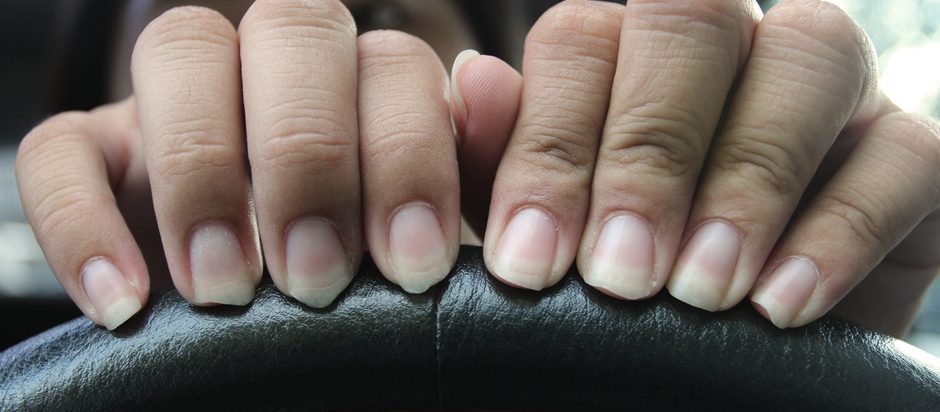 What can you tell from the appearance of nails? | Office for Science ...