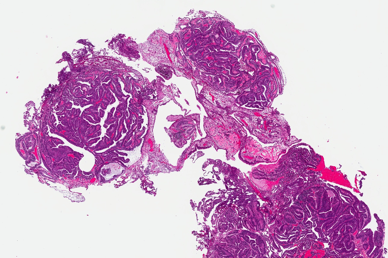 Papillary lesion prostate, Papillary lesion prostate Blog   Test Dr. Cristian Surcel