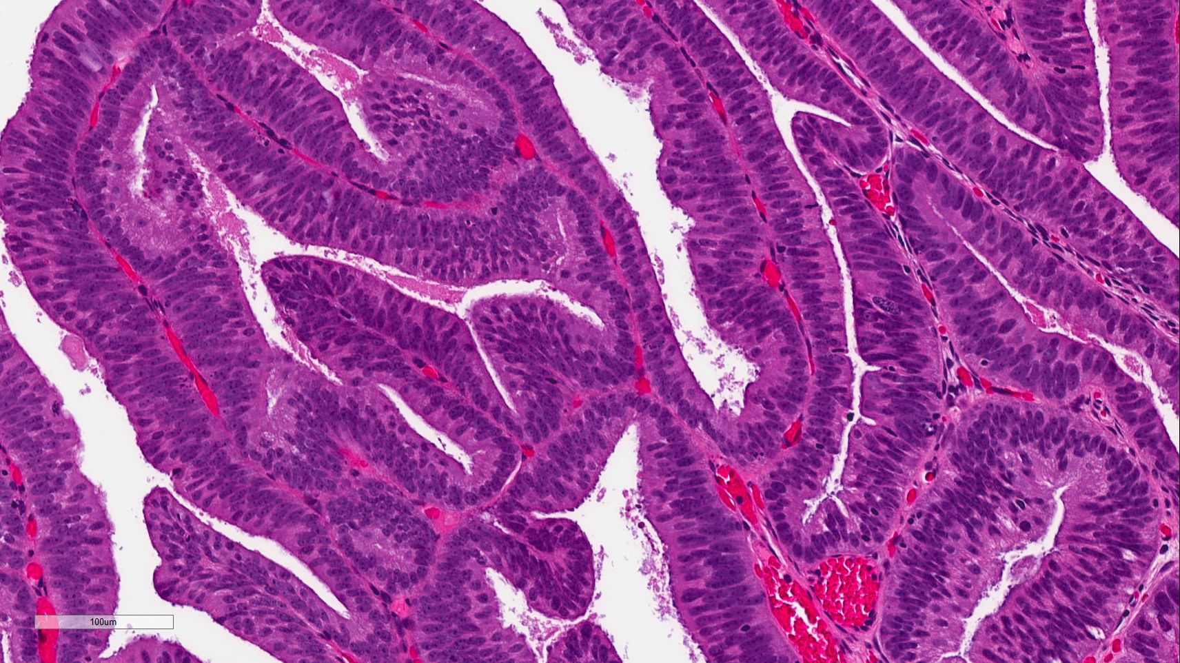 papillary lesion prostate ce analize se fac pt oxiuri