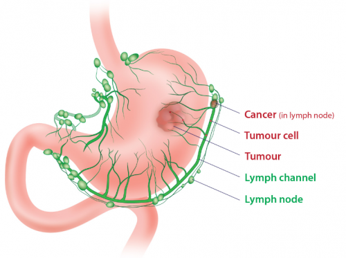 Cancer abdominal lymph nodes. Cancer abdominal lymph nodes - vacante-insorite.ro